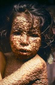 Smallpox  child